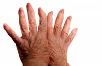 arthritis Arthritis Cure and Home Remedies