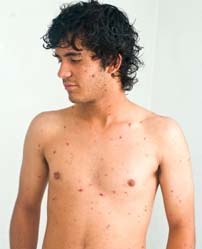 chickenpox Home Remedies for Chicken Pox