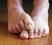 athletesfoot Cure Athletes Foot Naturally